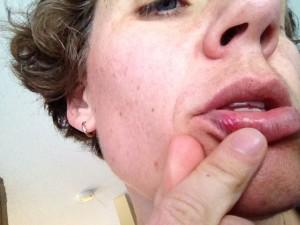 fat lip