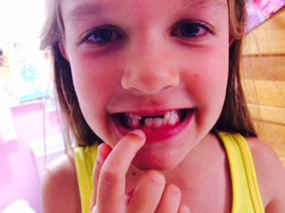 No top front teeth, now missing another on bottom.  Needless to say, corn on the cob is no fun this summer.
